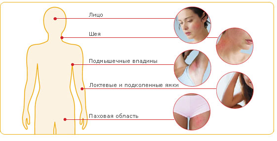 Диета при атопическом дерматите у взрослых