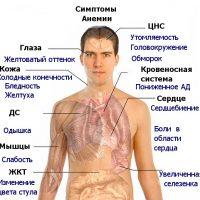 В12 дефицитная анемия