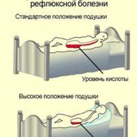 Гастроэзофагельная рефлюксная болезнь