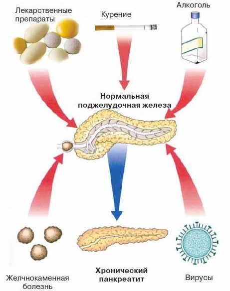 Лучшее лечение панкреатита - диета - лечение болезней
