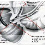 УЗИ при ЖКБ. Трансабдоминальная сонография в диагностике предкаменной стадии желчно-каменной болезни