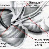 УЗИ при ЖКБ