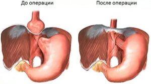 Рефлюкс-эзофагит. Операция