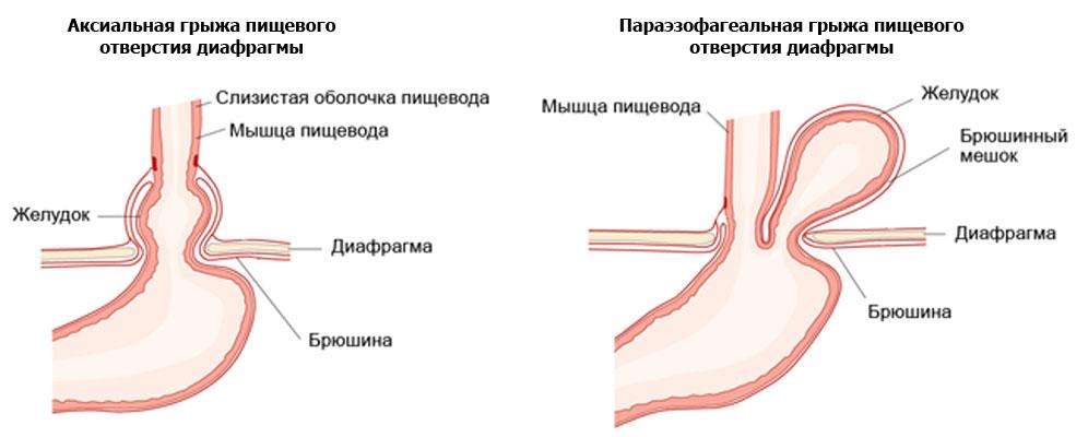 грыжа пищевода лечение