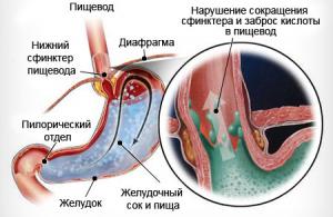 Рефлюкс-эзофагит