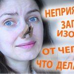 Запах изо рта (халитоз) — причины и лечение