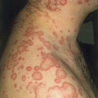 Лямблиоз - проявления на коже