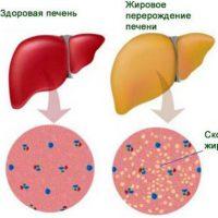 Неалкогольная жировая болезнь печени