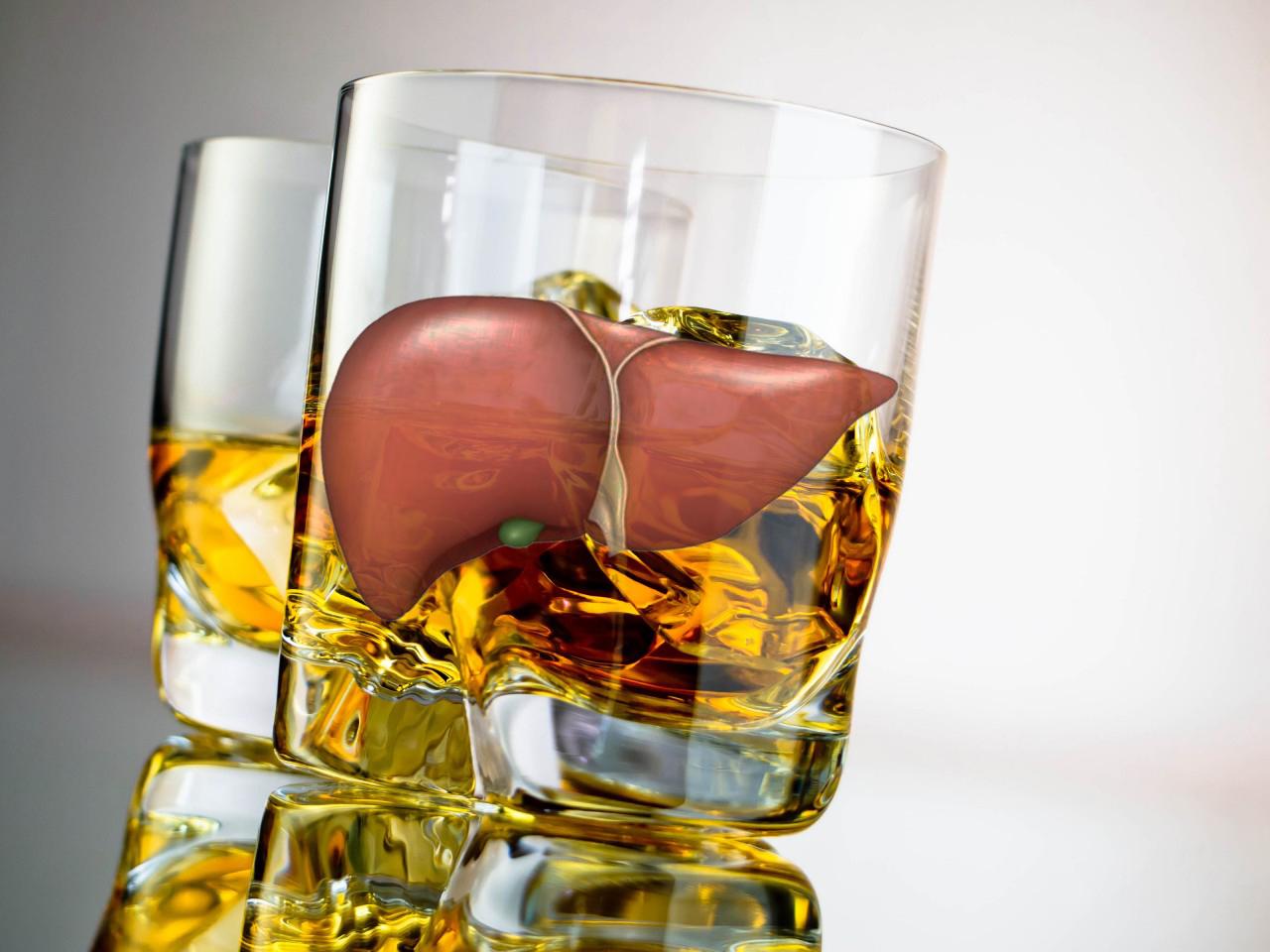 Как вылечить алкогольную болезнь печени и можно ли ее не лечить?