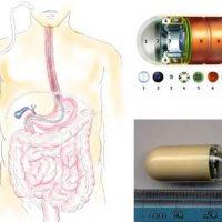 Лекарственные поражения тонкой и толстой кишок