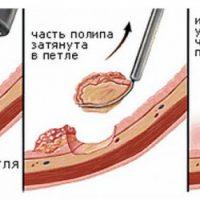 Гиперпластический полип желудка