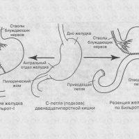 Виды резекций желудка